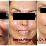 Botox Rockville