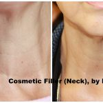neck filler rockville