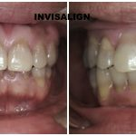 invisalign rockville