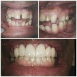 before and after dentist rockville