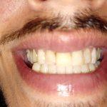 smile dentist rockville