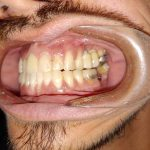 before teeth cleaning rockville