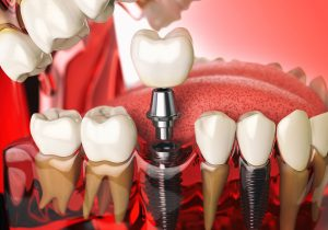 dental implants Rockville