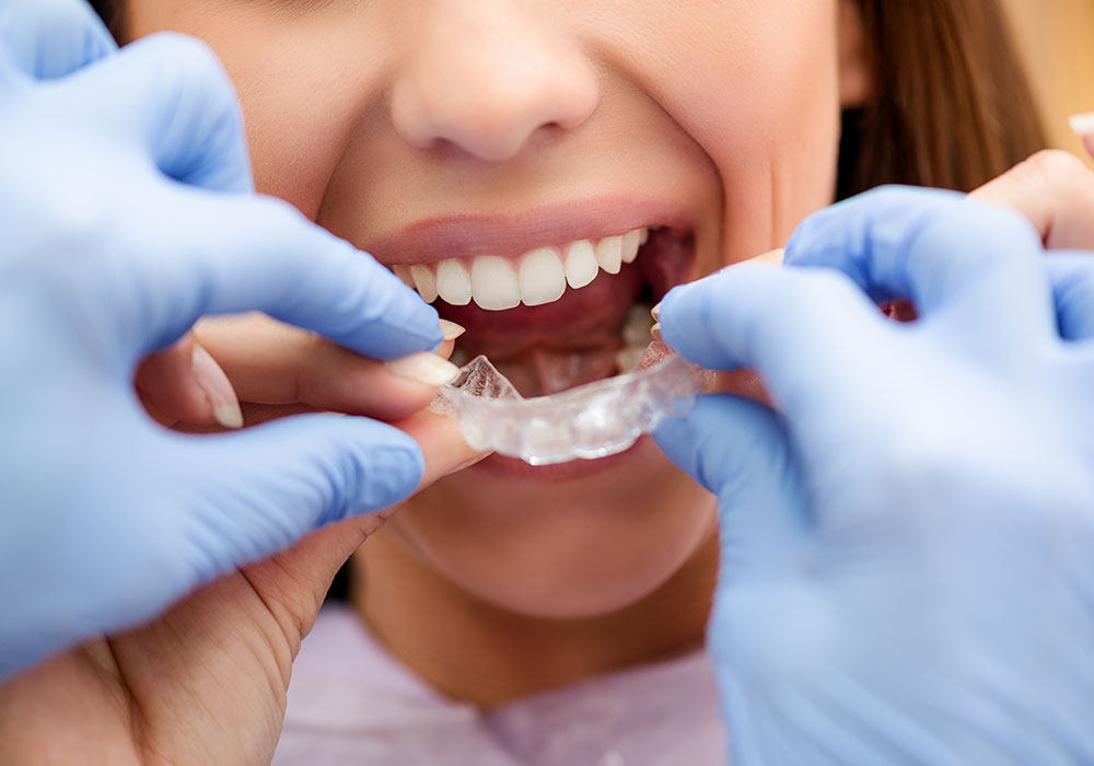 invisalign cost maryland