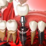 dental implants maryland