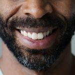 tooth bonding rockville