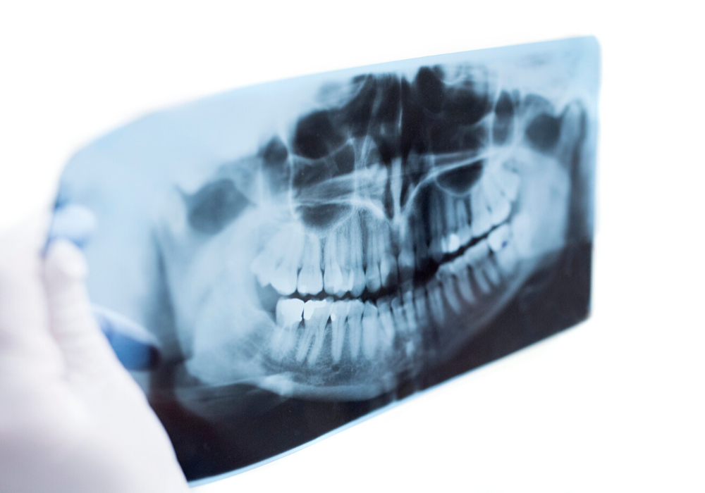 oral surgery in maryland