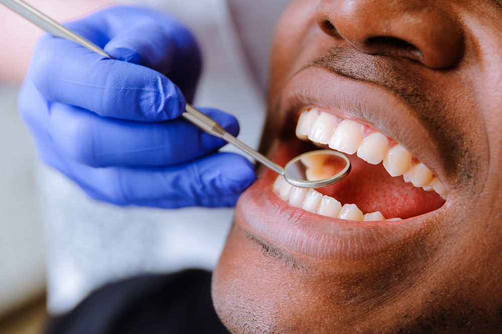 Why Is Regular Teeth Cleaning So Important?