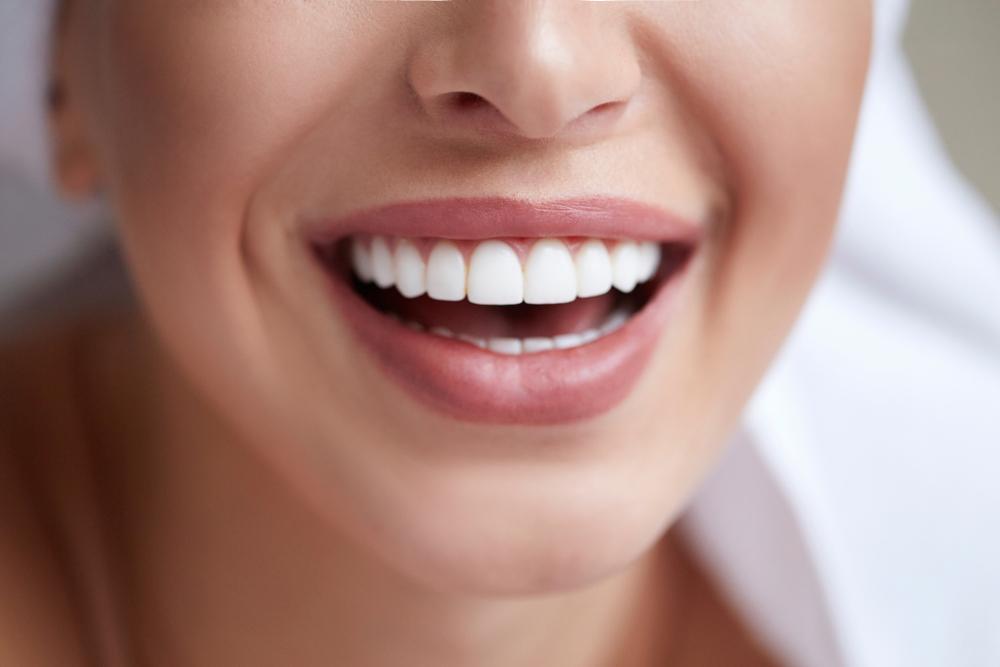 How Much Are Veneers?